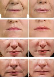 Juvederm befor eand after