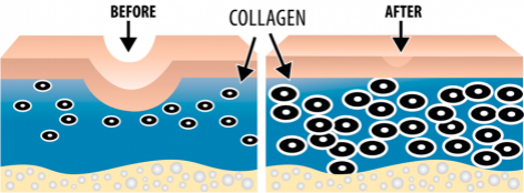 collagen_induction_therapy micropen fine lines and wrinkles